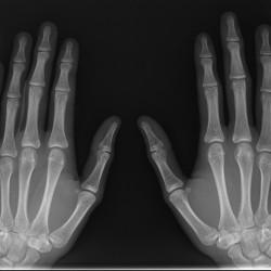 Why cracking your knuckles is bad for Jiu Jitsu